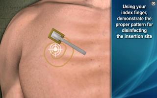 Screenshot of Medrills: NCD for Pneumothorax