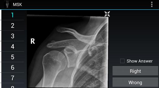 Radiology Flashcards: MSK