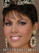 Cynthia Chanta,
