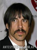 Anthony Kiedis,