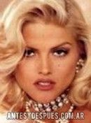 Anna Nicole Smith,