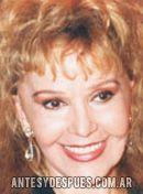 Beatriz Bonnet,