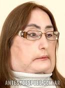 Connie Culp, 2009