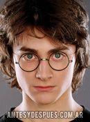 Daniel Radcliffe,