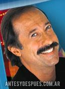 Guillermo Francella,