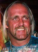 Hulk Hogan, 1985