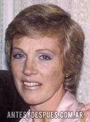 Julie Andrews, 1979