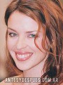 Kylie Minogue,