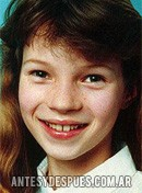 Kate Moss,