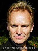 Sting,