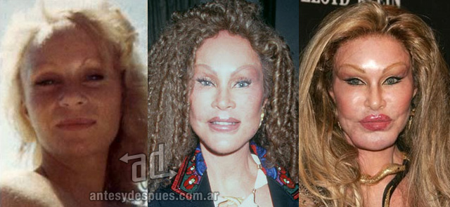 jocelyn wildenstein antes y despues de la cirugia plastica