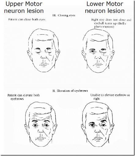 Left Lower Motor Neuron Facial Weakness