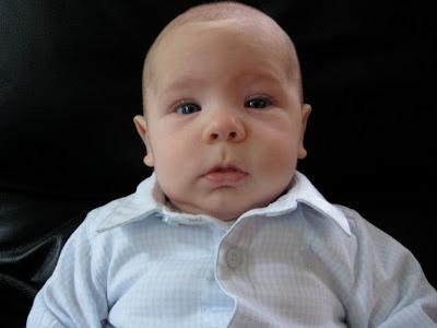 cleft chin baby - photo #9