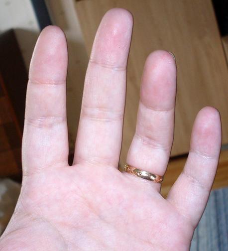varför får jag sprickor i naglarna