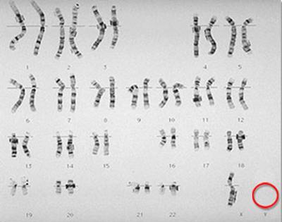 kromosom turner