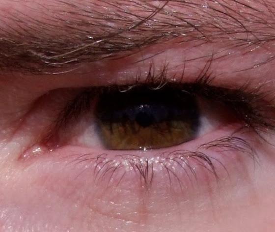 john's eye