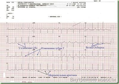 ЭКГ изменения электрокардиограммы при переохлаждении