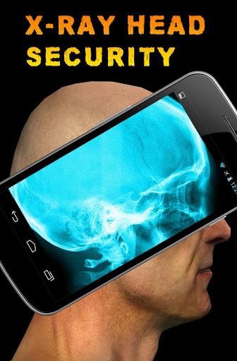 X射线头部安全