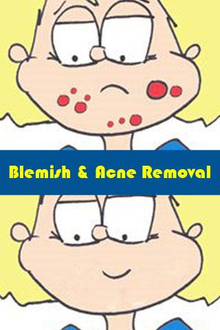 Blemish and Acne Removal
