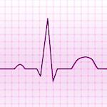 Electrocardiograma ECG Tipos 8.0