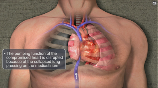 Medrills: NCD for Pneumothorax- screenshot thumbnail