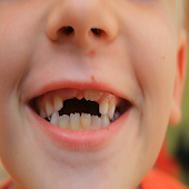 Repairing The Front Tooth