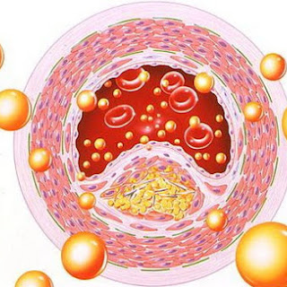 Clear Clogged Arteries (Atherosclerosis) Using This Great Natural Remedy