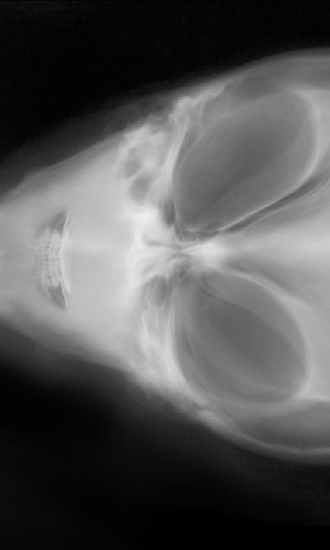 Amazing XRay Scanner - screenshot