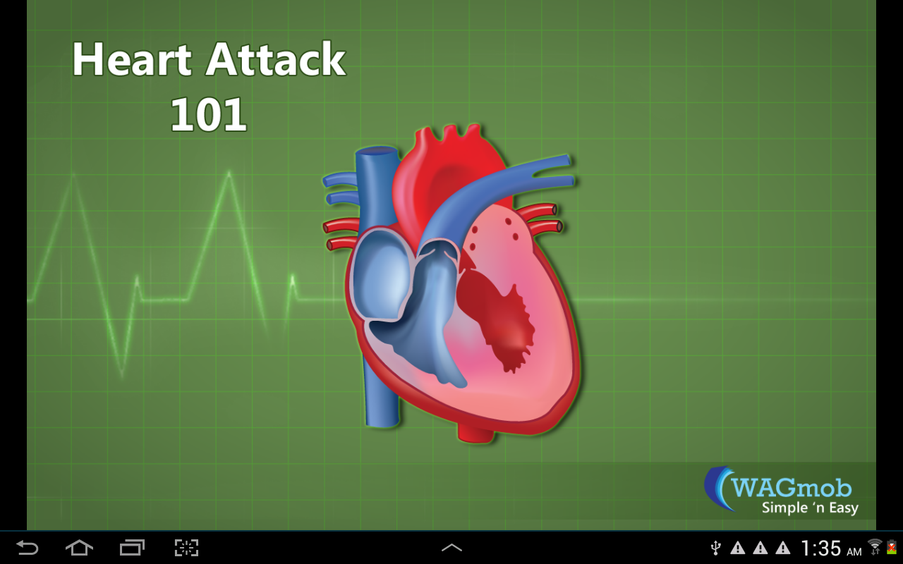 Heart Attack by WAGmob - screenshot