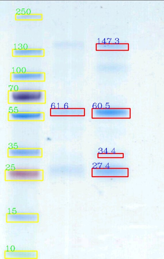 Gelapp: DNA&Prot Gel Analyzer- screenshot