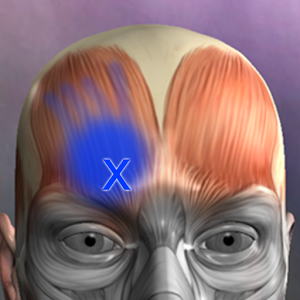 Muscle Trigger Point Anatomy for Android