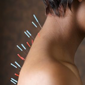 Acupuncture App