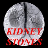 Dealing With Kidney Stones!