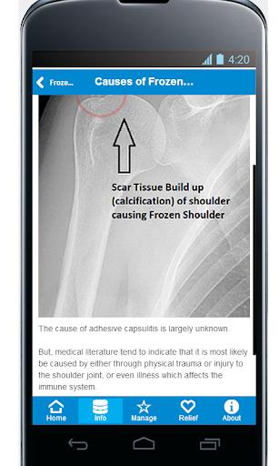 Frozen Shoulder Pain Relief