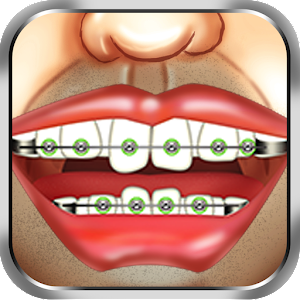 Braces Surgery Dentist Game for PC and MAC