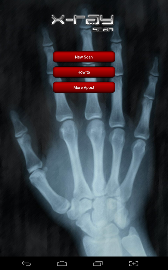 X-ray Scanner Prank- screenshot