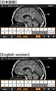 CT・MRI解体新書- スクリーンショットのサムネイル