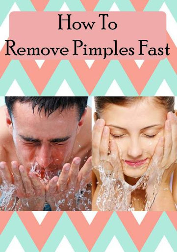 How To Remove Pimples Fast