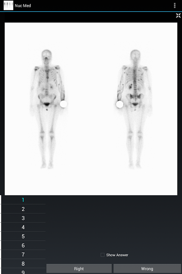 Radiology Flashcards: Nuc Med- screenshot