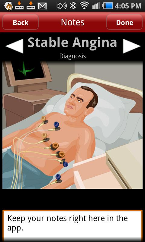Stable Angina - screenshot