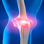 Arthritis Joint Pain App