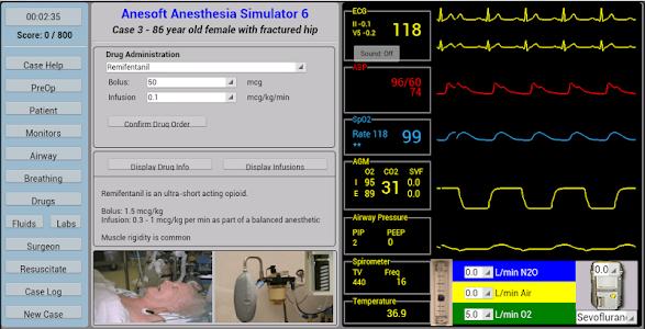 Anesthesia Sim 6 v1.0