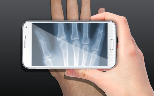 X射線掃描儀的笑話