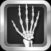 Wrist Repair