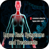 Lupus Rash Symptoms Treatments