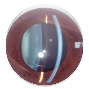 Slit Lamp Pro - Ophthalmic CAM for Android