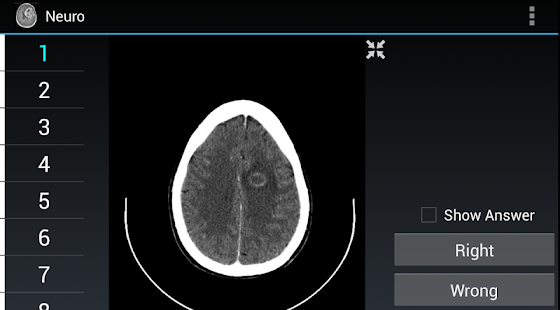 Radiology Flashcards: Neuro- screenshot thumbnail