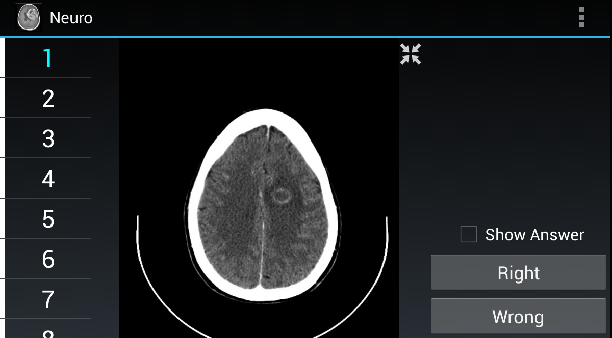 Radiology Flashcards: Neuro- screenshot