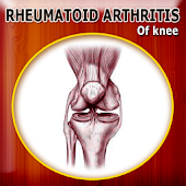 Rheumatoid Arthritis of Knee