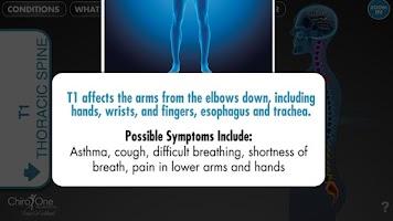 Screenshot of SpineEffects